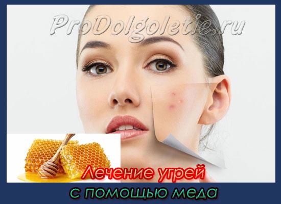 Лечение угрей с помощью меда