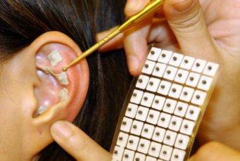 микроиглы для ушей